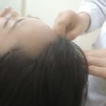 頭皮美容鍼灸